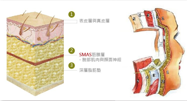 有别於传统拉皮手术只拉最外层的皮肤,而三层次极限拉皮不仅仅只有拉